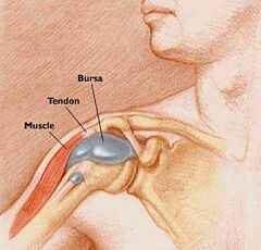 gennyes bursitis a könyökízület tünetei és kezelése