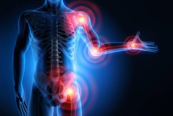 arthrosis rizskezelés hogyan kell élni a csípőízület artrózisával