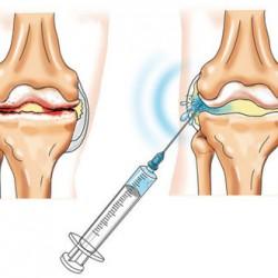 chondroprotektorok tablettákban térd artrózisához hemlock és ízületi fájdalmak