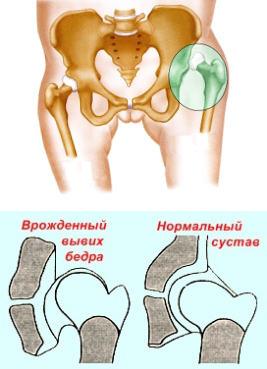 ízületi kezelés sztavropolban