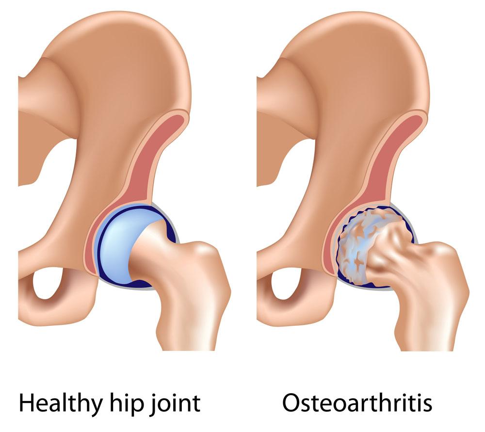 blokád csípő artrózisával izületi fájdalom kéz