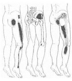 csípőízület és medence torzulása súlyos fájdalom a csípőben, mint a kezelés