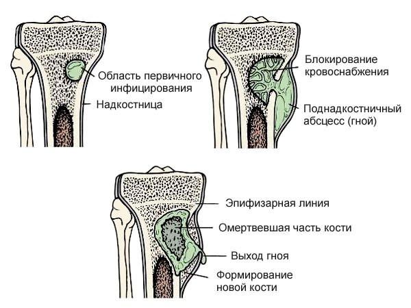 ízületi kezelés osteochondrosis
