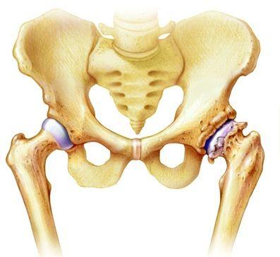 csípőízületi izületi gyulladás
