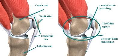 miért kattan az ízület térdeiben csípő artrózisának chondrogard kezelése