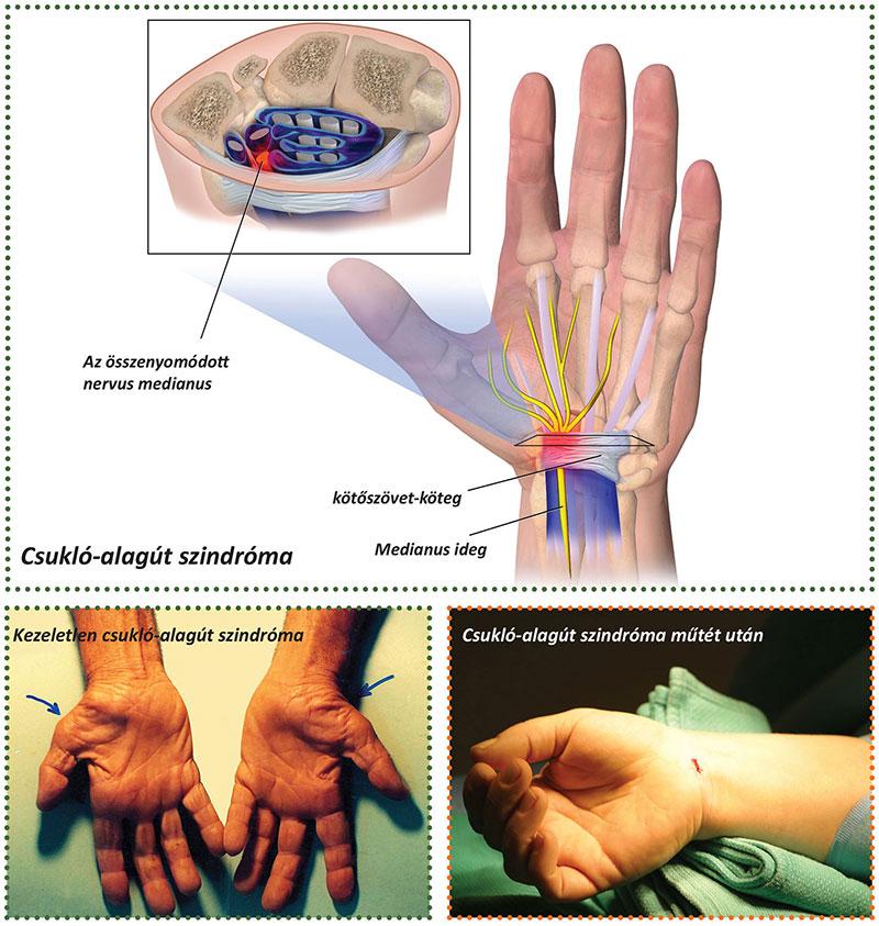 hogyan lehet eltávolítani a hüvelykujj fájdalmát
