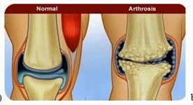 ízületek állapota osteochondrosisban bokaízület csontritkulása hogyan kell kezelni