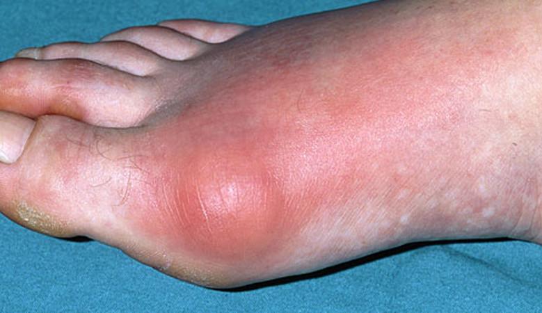 lábízületi betegség és kezelése