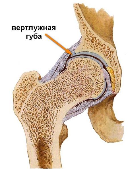 a csípőízület coxarthrosisának kezelésére szolgáló módszerek artróziskezelési injekciók áttekintése