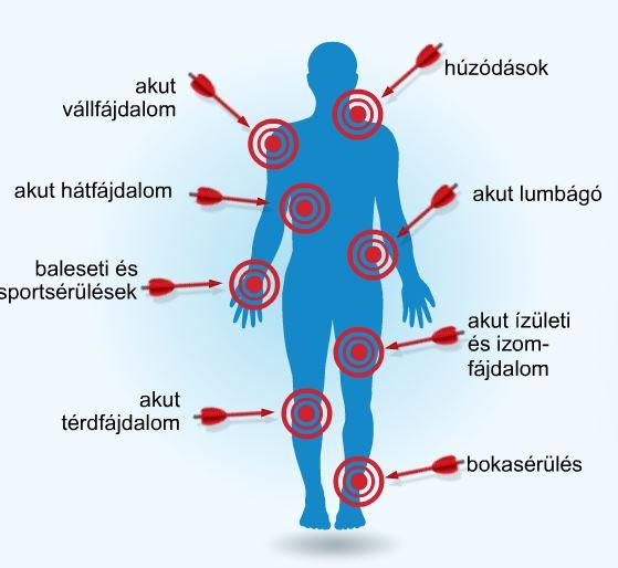 gyógyszerészeti kenőcsök ízületi fájdalmak kezelésére
