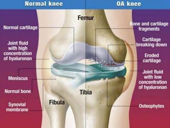 hogyan lehet megszabadulni a térdízület artrózisától hogyan lehet kezelni az ízületi gyulladást vagy a térd artrózisát