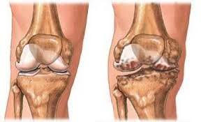 melyek a térd artrózisának kenőcsei