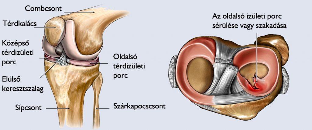 Térdízület műtét