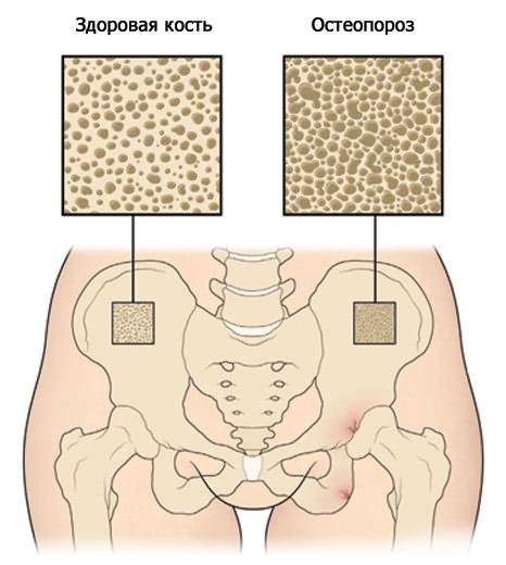 csípőfájás az ízületpótlás után sétálhatok térd izületi gyulladással