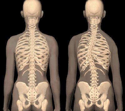 mellkasi gerinc tünetei és kezelése