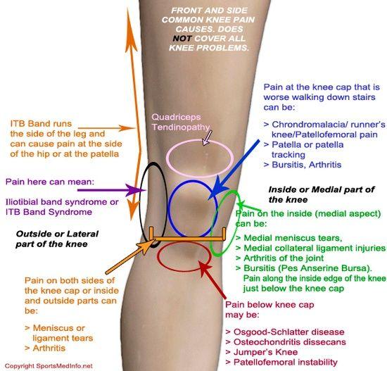térdízületek fáj az időjárásban gyógyszerek csontritkulás és csípés kezelésére
