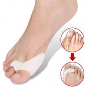 artrózis a lábujjak kezelésében