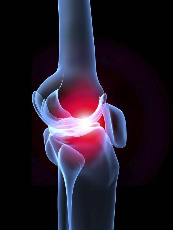 ízület regeneráló krém fáj a hát és a lábak ízületei
