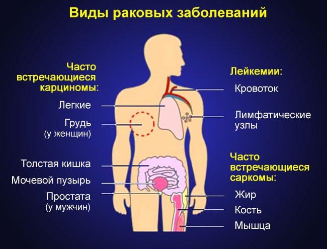 Tumor vállízületek tünetei