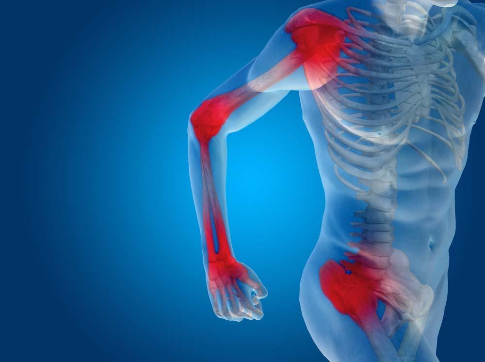 arthrosis kezelés oroszország klinikáin könyök izületi gyulladás