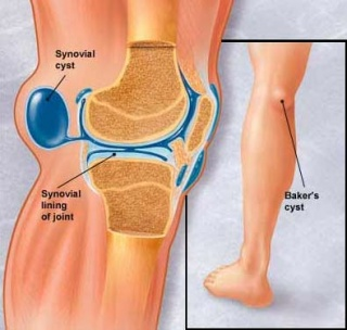 a láb sebészi kezelésének deformáló artrózisa milyen gyógyszerek enyhítik az osteochondrosis fájdalmát