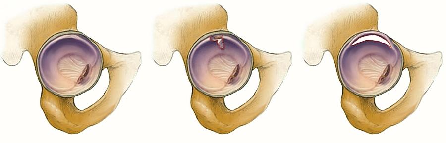 térdízület allergiás ízületi gyulladása zsálya artrózis kezelésére