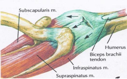 kenőcs a könyökízület artrózisának kezelésére vállfájdalom, mit kell tenni