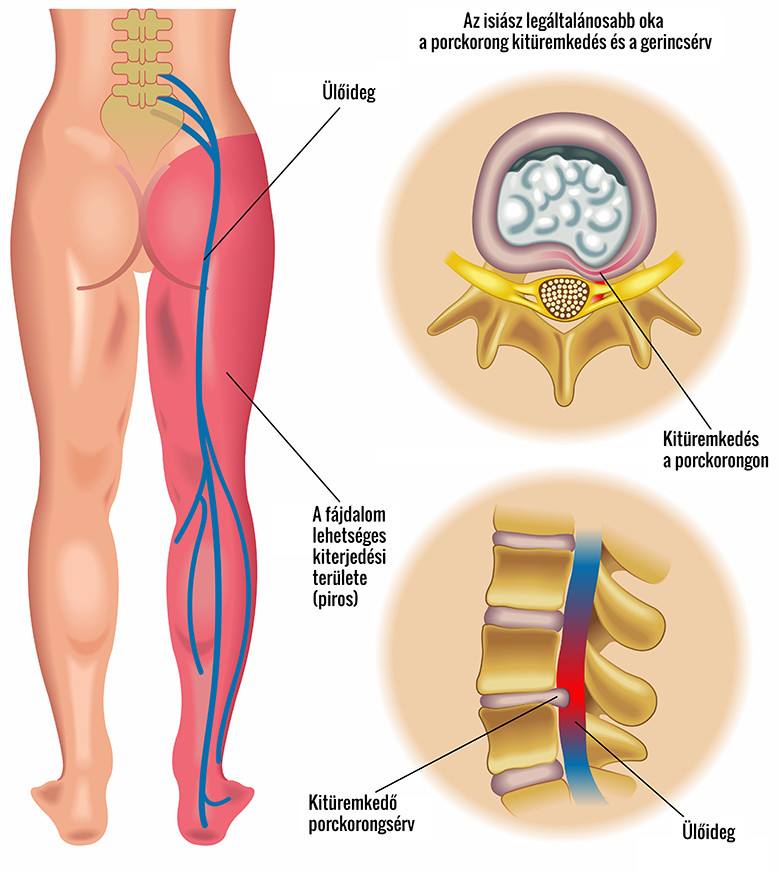 gyógyszerek az ágyéki csontritkulásról