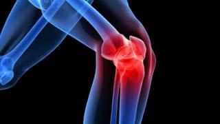 hatásos az artrózis kezelésében ízületi fájdalom a véradás után