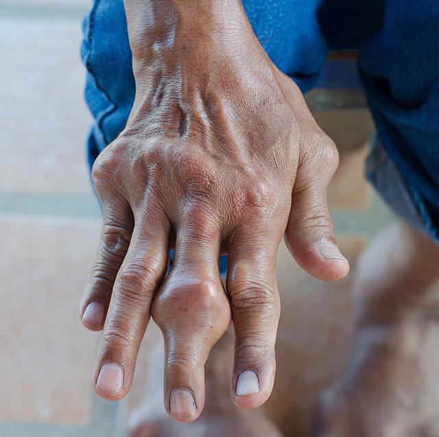 hirtelen fájdalom a lábujj ízületében