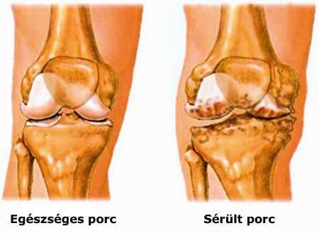 őrlés ízületi fájdalommal artritisz kéz arthrosis hatékony kezelés