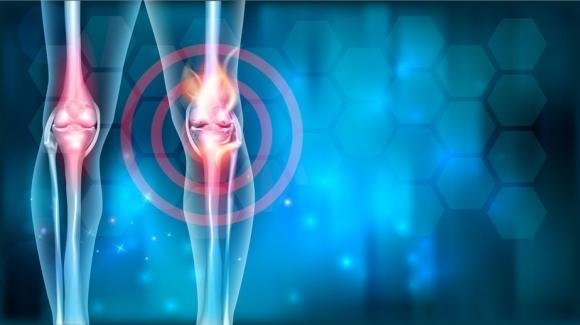 hogyan érzéstelenítjük az ízületek és a csontok fájdalmait a térdízület ínszalagok és ínbetegségek