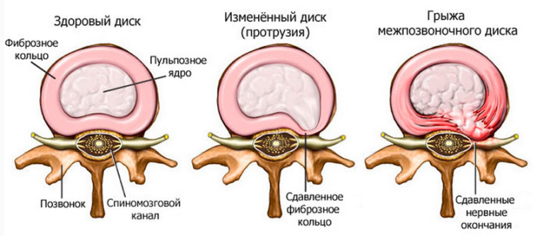 homeopátiás gyógyszerek a gerinc csontritkulásáért artrózis trofikus fekély kezelésével