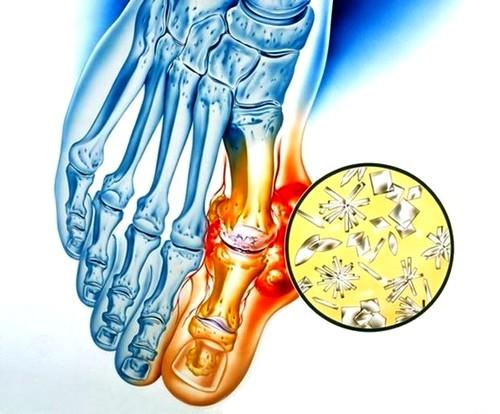 idegkárosodás a térdízület kezelésében metacarpalis metacarpalis ízület