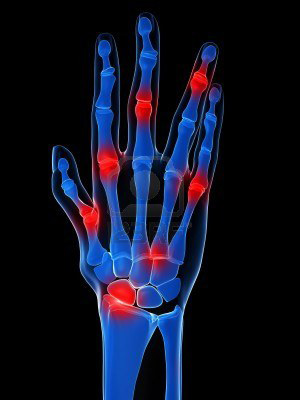 izületi gyulladás az ujjakban a kézízület duzzanata