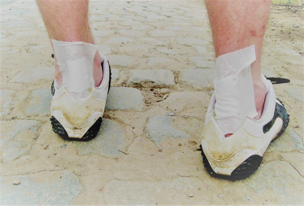 kenőcsök a bokaízület sérüléseihez ízületi krém hatás