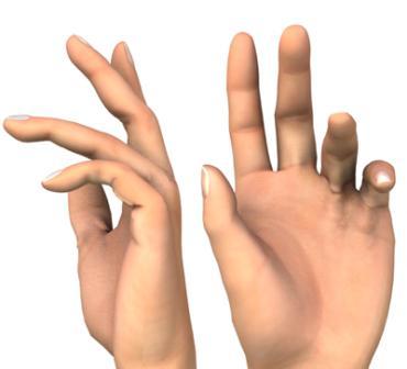 könyökfájdalom az ujjak hajlításával