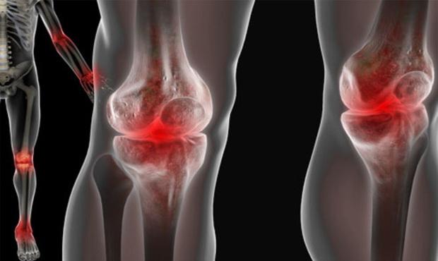 lábfájdalom a lábban a vállízület ligamentumainak károsodásával