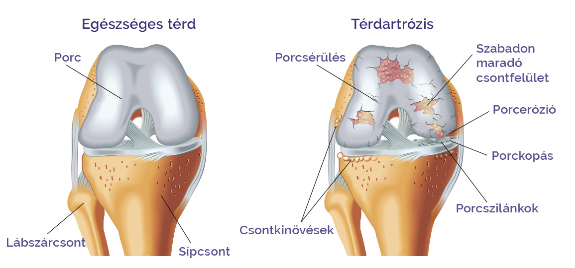 álom az artrózis kezelésére