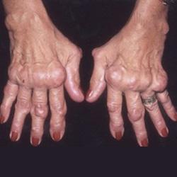 mely országokban kezelik a rheumatoid arthritist csípőkezelés receptje