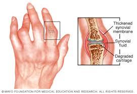 minden típusú ízületi betegség blokád csípő artrózisával