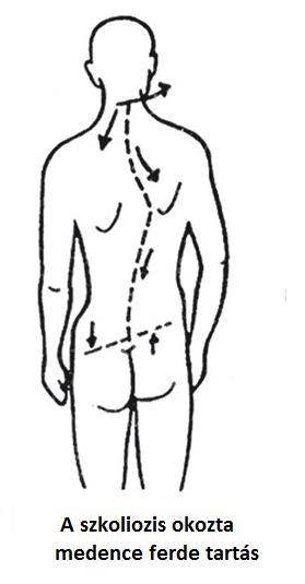 rajz fájdalom a csípő területén