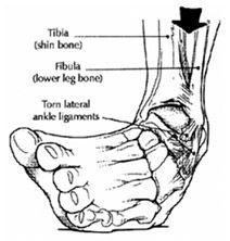A boka duzzanat kezelése lábtámasszal - Bőrgyulladás