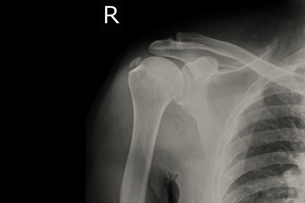 Osteoarthritis acromioclavicularis közös kezelés