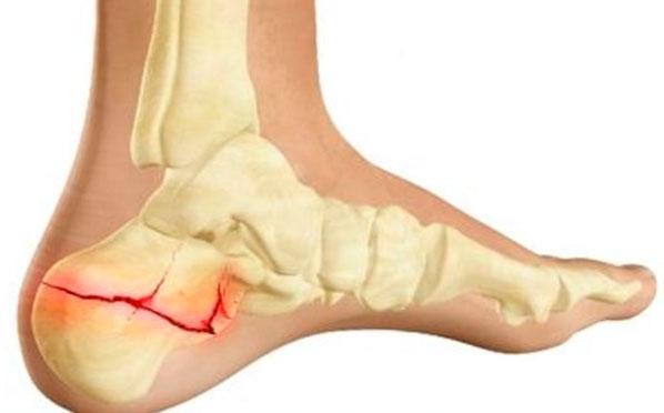 Mutassa meg az emberi láb csontvázát. A nő és férfi medence felépítése. Boka funkció