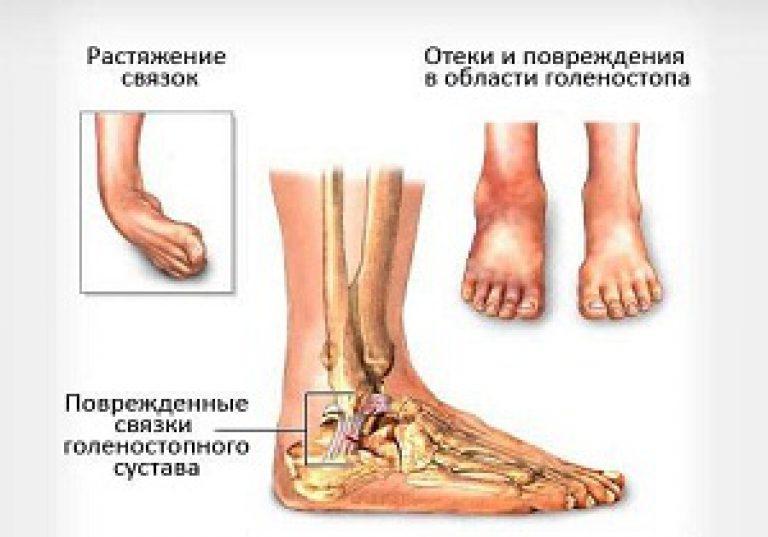 A bokaízület szalagainak törése: lényeg, kórtani típusok, kezelés - Könyök