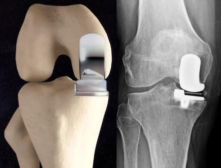 térd chondromalacia kezelés mely országokban kezelik a rheumatoid arthritist
