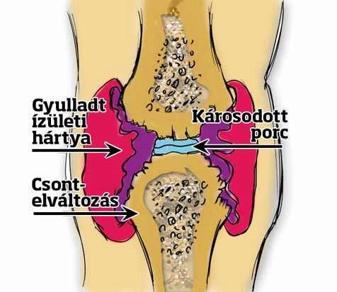 fáj és megrontja a vállízületet, hogyan kell kezelni artrózis kezelése a poltavaban