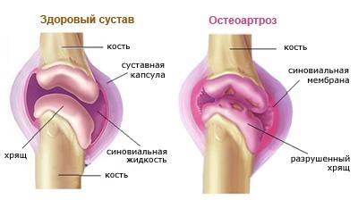 artrózis váll kezelés torna