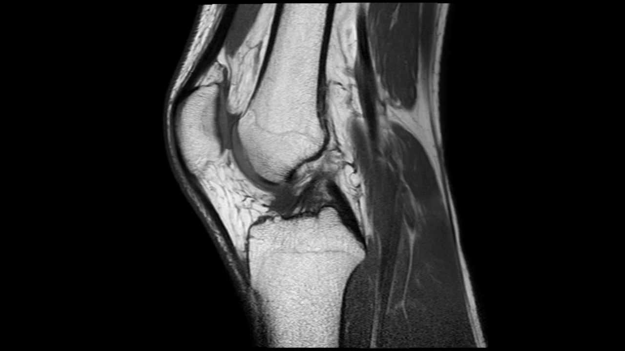 térd osteochondrosis gerincvelő gerinc artrózisának kezelésére szolgáló módszerek